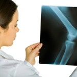 Orthopedics | Medical Tourism | Affordable Orthopedic Surgery